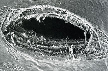прокол иглы при спинномозговой анестезии