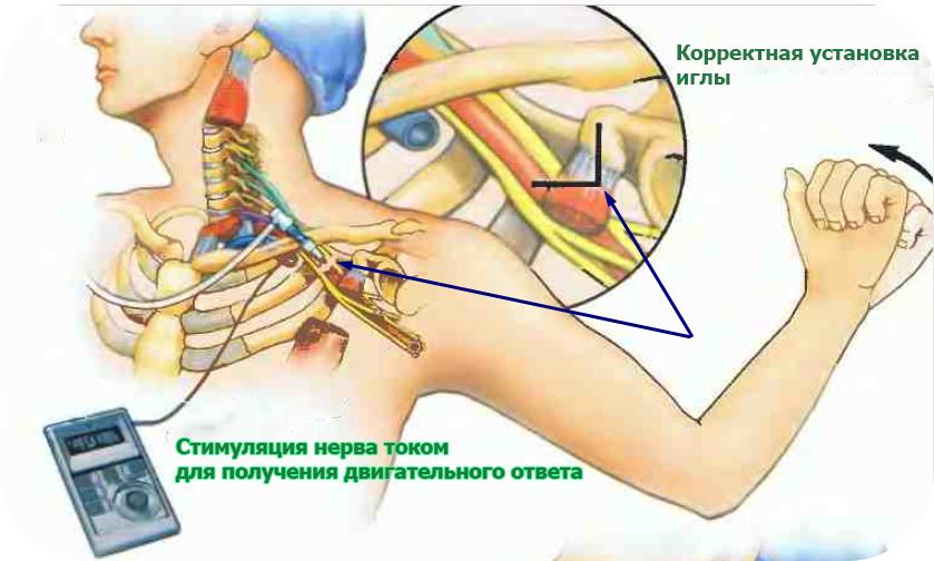 Проводниковая анестезия плечевого сплетения
