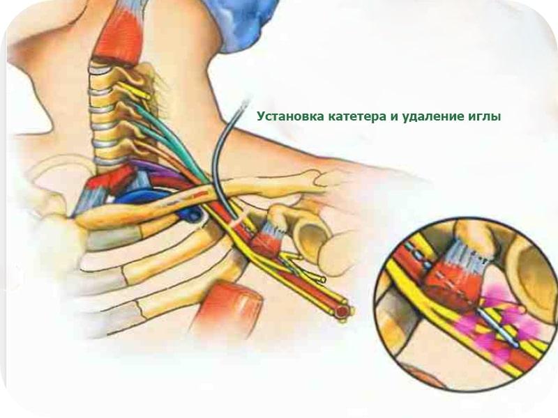 катетеризация плечевого сплетения