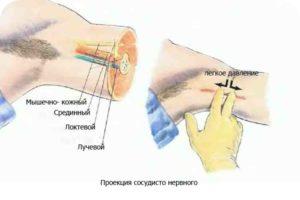 подмышечный доступ при проводниковой анестезии